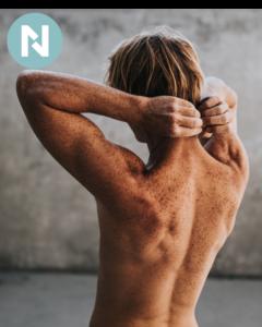 cancer de piel | prevencion cancer de piel